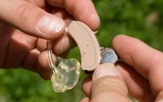 Разновидности батареек для слуховых аппаратов